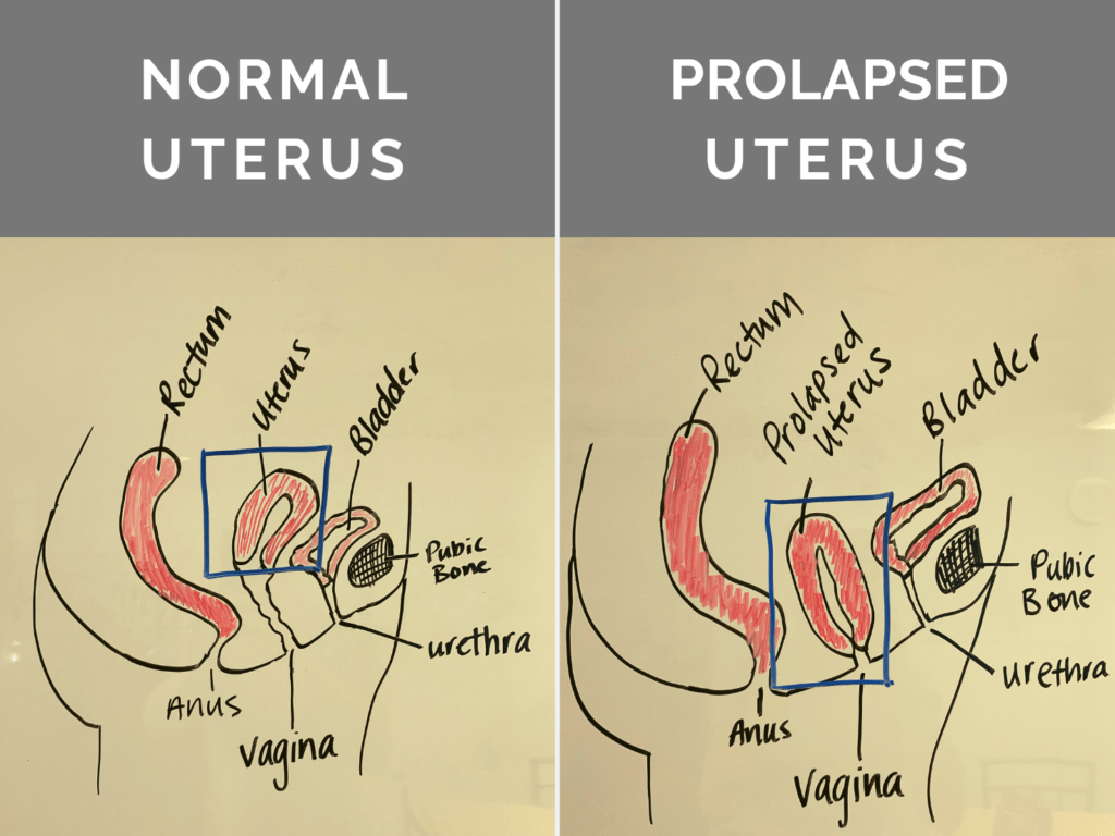 Illustration of Prolapsed Uterus